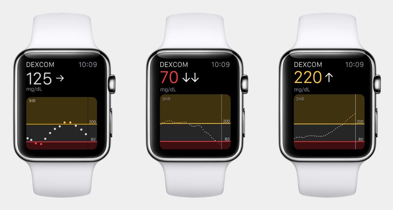 Apple Watch app glycémie DexCom