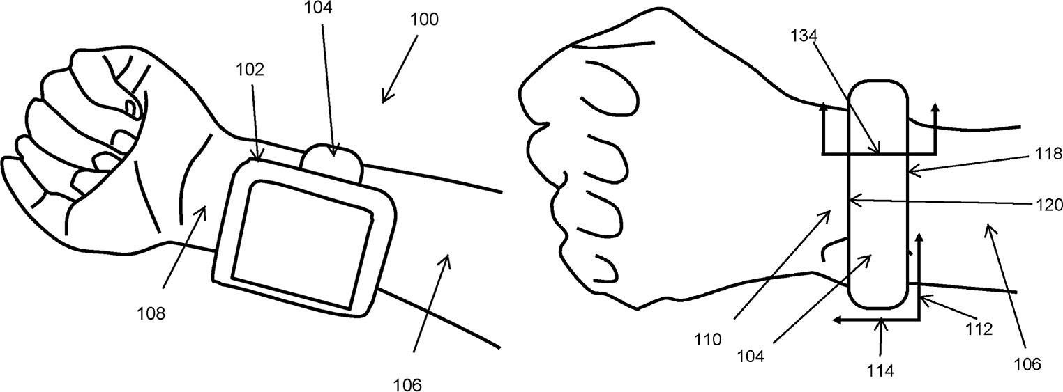 Brevet Bracelet Apple Watch pression artérielle