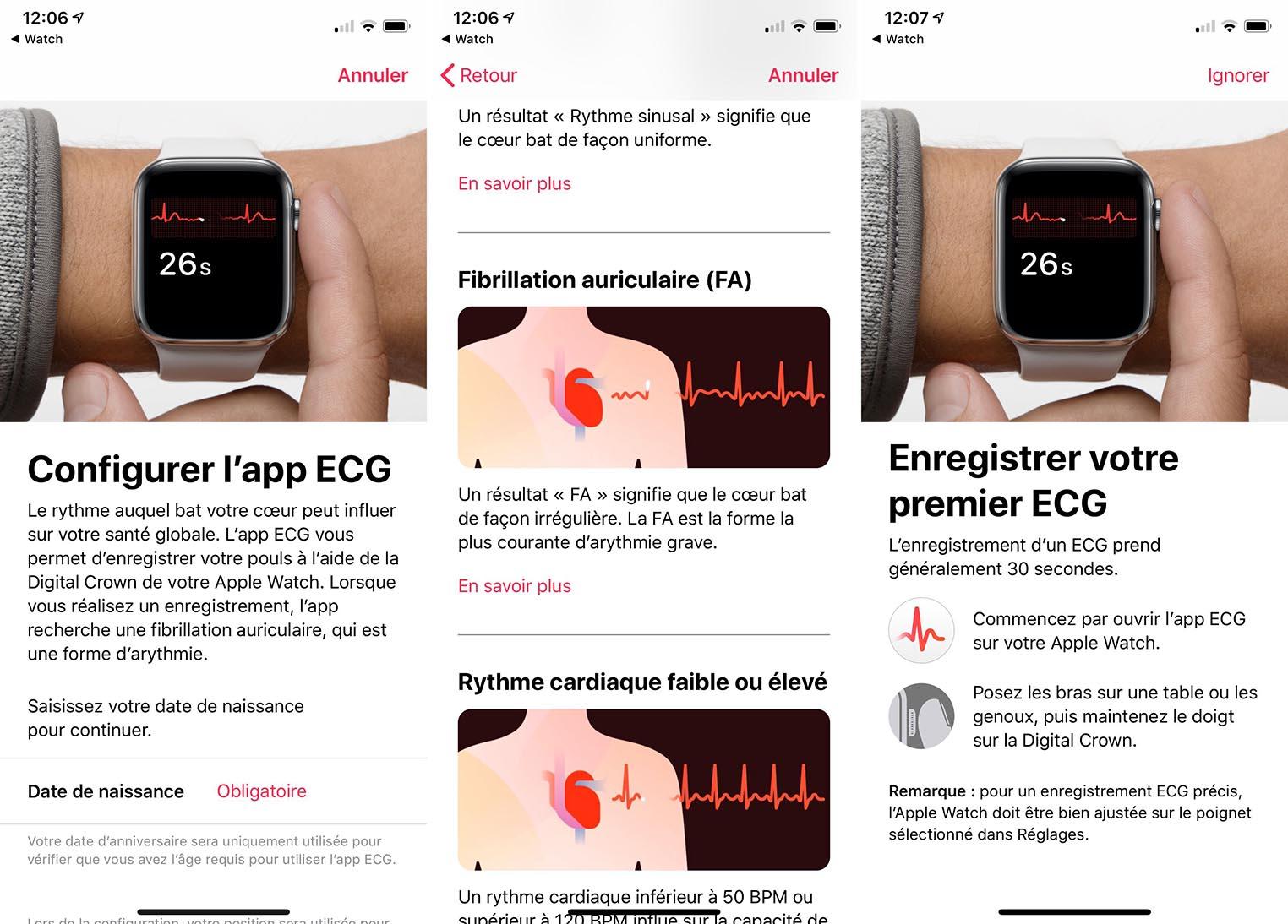 ECG Apple Watch français