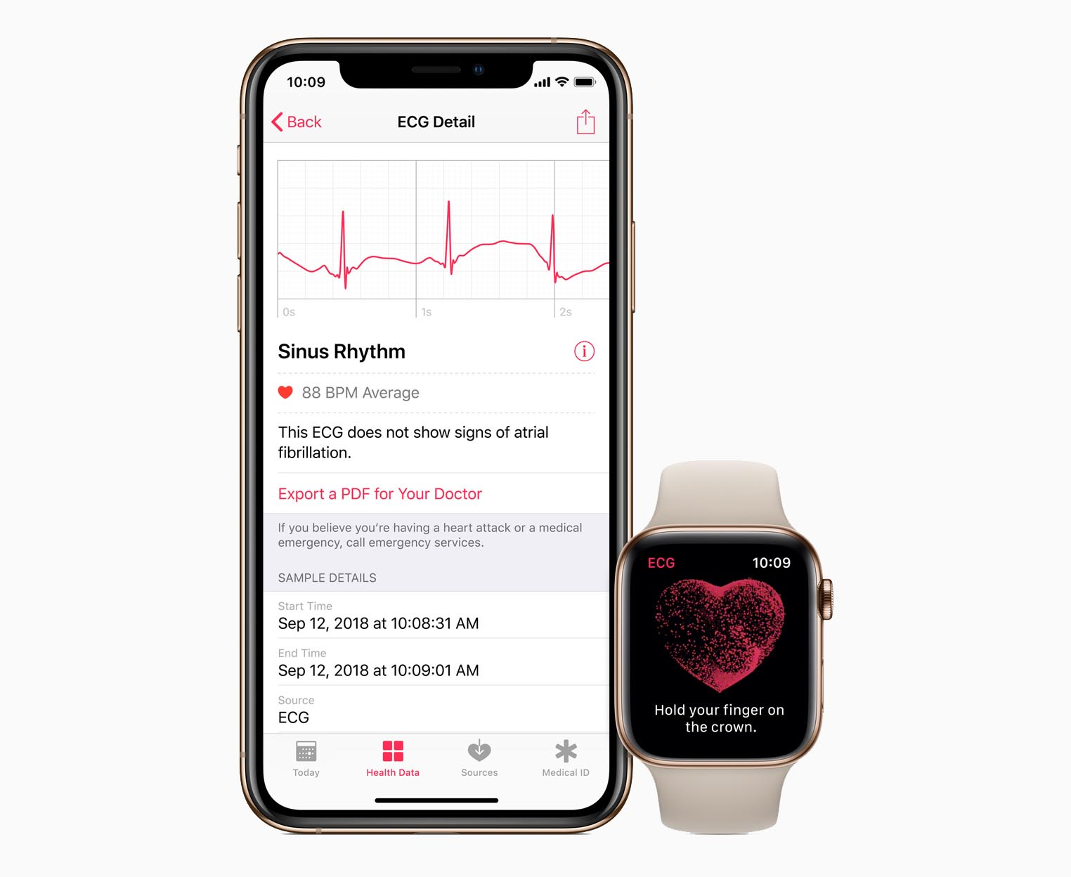 ECG Apple Watch Series 4 Health app